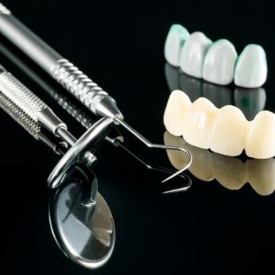 La pose d'un pont fixe sur des dents naturelles: quelques étapes pour un remplacement durable