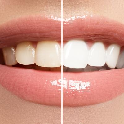 Pourquoi les dents sont-elles parfois jaunes?
