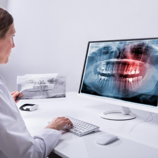 Radiographies numériques