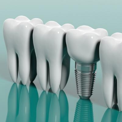 Le processus implantaire: quelques étapes pour un remplacement dentaire efficace