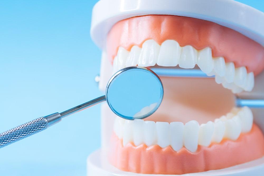 Le point sur la parodontite